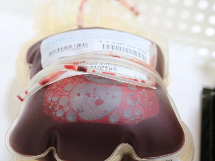 چرا کووید ۱۹ در دارندگان گروه خونی O کمخطرتر است؟